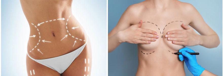 Liposuccion et operation mammaire